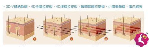 北京上上相做埋线提升除皱过程