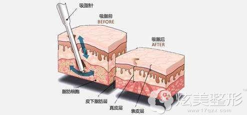 吸脂手术步骤的简易图