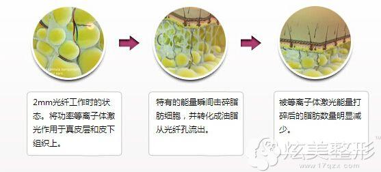 光纤溶脂的手术原理图