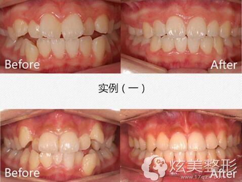 江荣强医生牙齿矫正案例