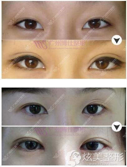 广州博仕失败双眼皮修复术前术后对比照