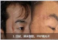 激光祛疤4cm手术多少钱?到天津时光祛疤找哪个医生好