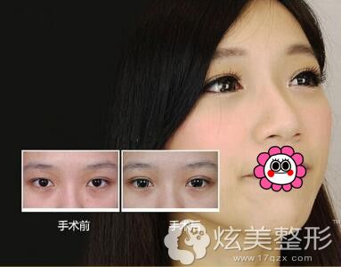 邵阳德美整形双眼皮案例二
