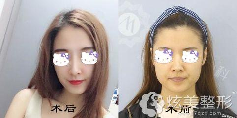 王俞明主任做朝天鼻整形术后效果对比