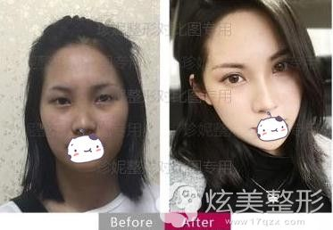 珍妮李阳医生隆鼻手术效果