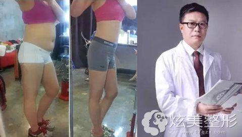 郭文煜院长水动力吸脂减肥术前术后对比