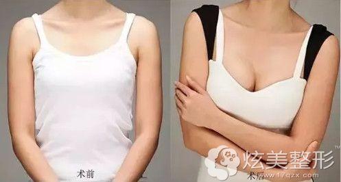 尹卫东专家做隆胸手术案例