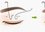 想做微创无痕韩式定点双眼皮在兰州仁和选哪个医生好