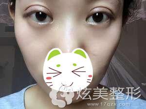 小叶双眼皮失败形成肉条眼