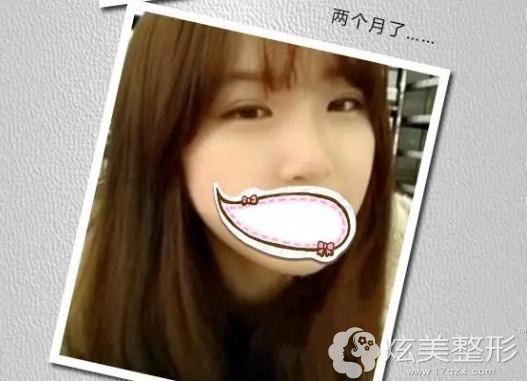 李阳医生软骨隆鼻一个月后恢复差不多
