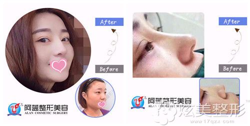 阿蓝整形医院雷晓东做自体软骨隆鼻案例