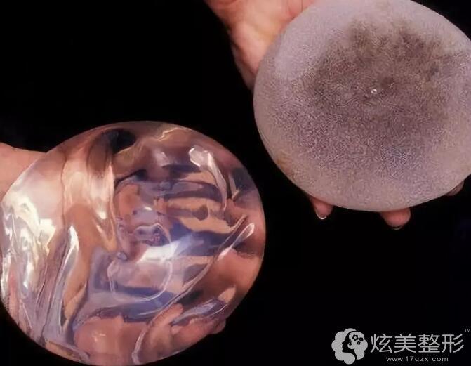 硅胶假体隆胸材料