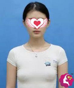 在南充达芬奇做隆胸前是平坦的胸部