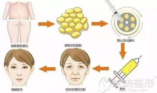 华美采用自体脂肪除皱术原理