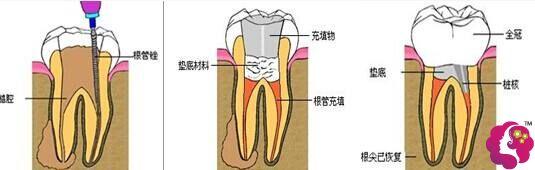 北京康贝佳口腔医院根管治疗图解