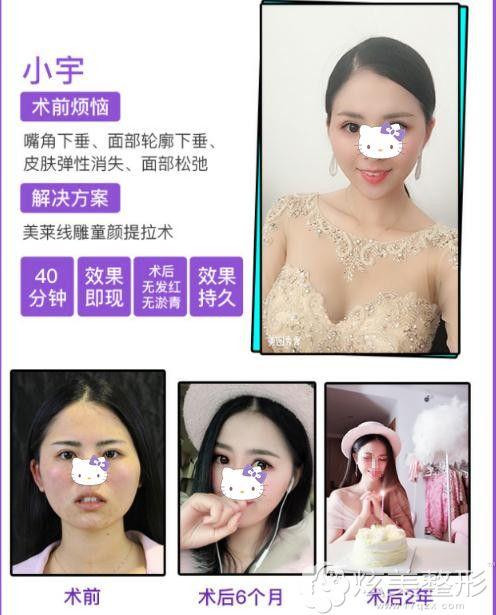 郭江花医生的埋线提拉真人术后效果图
