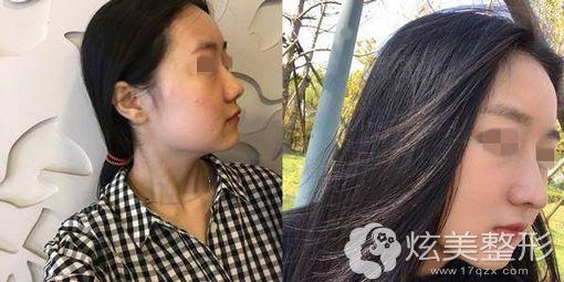 龙海波院长假体隆鼻术前术后真人案例对比