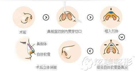 假体隆鼻的手术简易图