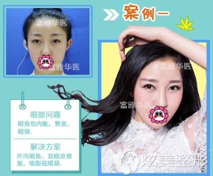 齐林开眼角+双眼皮修复+祛眼袋案例