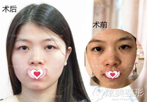 广州美莱超皮秒祛除混合斑案例