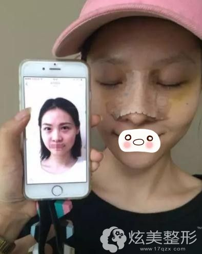 武汉美基元做鼻综合手术第二天