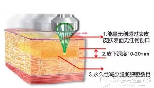 超声吸脂的手术原理图