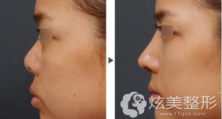 扬州施尔美6D全生态翘鼻术让短塌鼻立体挺翘