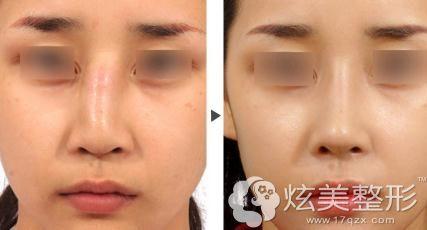 厉建华6D全生态翘鼻术让宽鼻梁精致灵巧