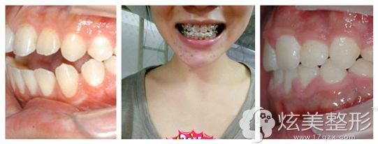 在广州美莱做矫正牙齿术后2年恢复效果