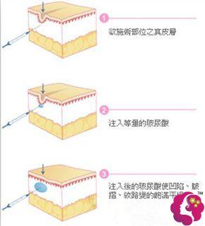 玻尿酸填充泪沟的手术原理步骤图