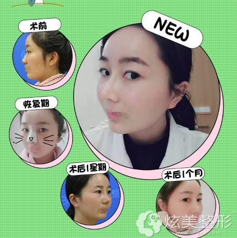 赵鹏医生的鼻综合手术案例