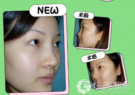 赵辑医生的鼻综合手术案例