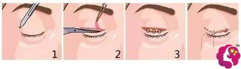 额肌瓣下移悬吊手术过程