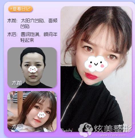 上海美联臣面部填充真人案例