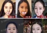 广州李希军院长解答取肋软骨隆鼻会对身体造成影响吗?