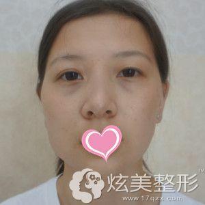 在长沙星雅做磨骨术和隆鼻术前是国字脸和塌鼻子