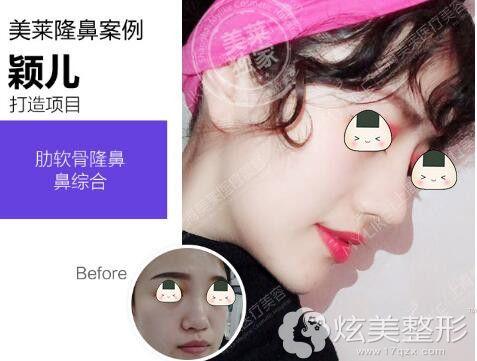 上海美莱整形医院隆鼻案例