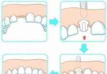 即刻种植牙和传统种植牙有什么区别?在上海华美做好不好