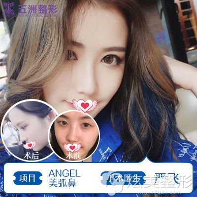 武汉五洲莱美做鼻综合案例