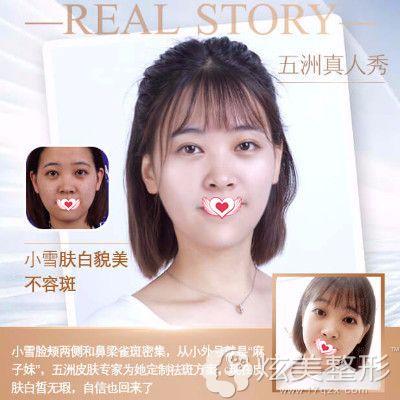 武汉五洲莱美激光祛斑案例