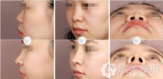 刘杰伟主任做鼻头缩小手术真人案例效果