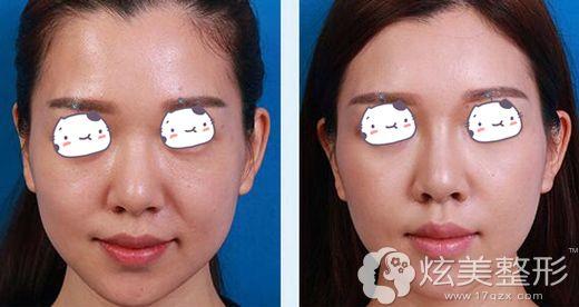 深圳美莱做面部埋线提升术后恢复效果对比