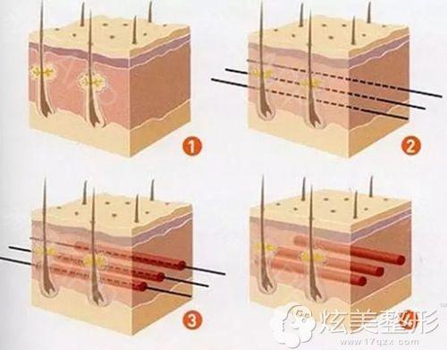 深圳美莱整形做面部埋线提升手术步骤简易图