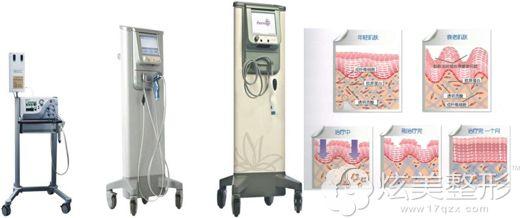 热玛吉使用的设备以及对皮肤的作用原理