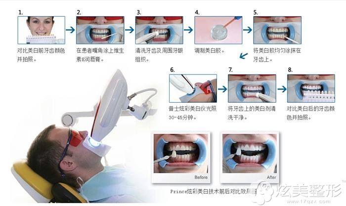 李振芳分享冷光美白牙齿流程