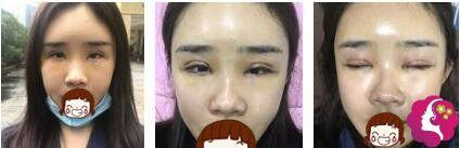 杨明峰医生割双眼皮术后3天肿胀明显