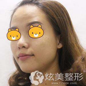 到海口海南瑞韩医学美容医院面诊前满脸斑点的自己