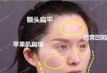 自体脂肪填充面部很假?先看看我在上海华美手术效果分享