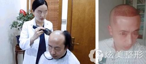 毛发移植手术前