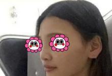 塌鼻子在海南韩美做鼻综合后才知道和女神只差一道梁